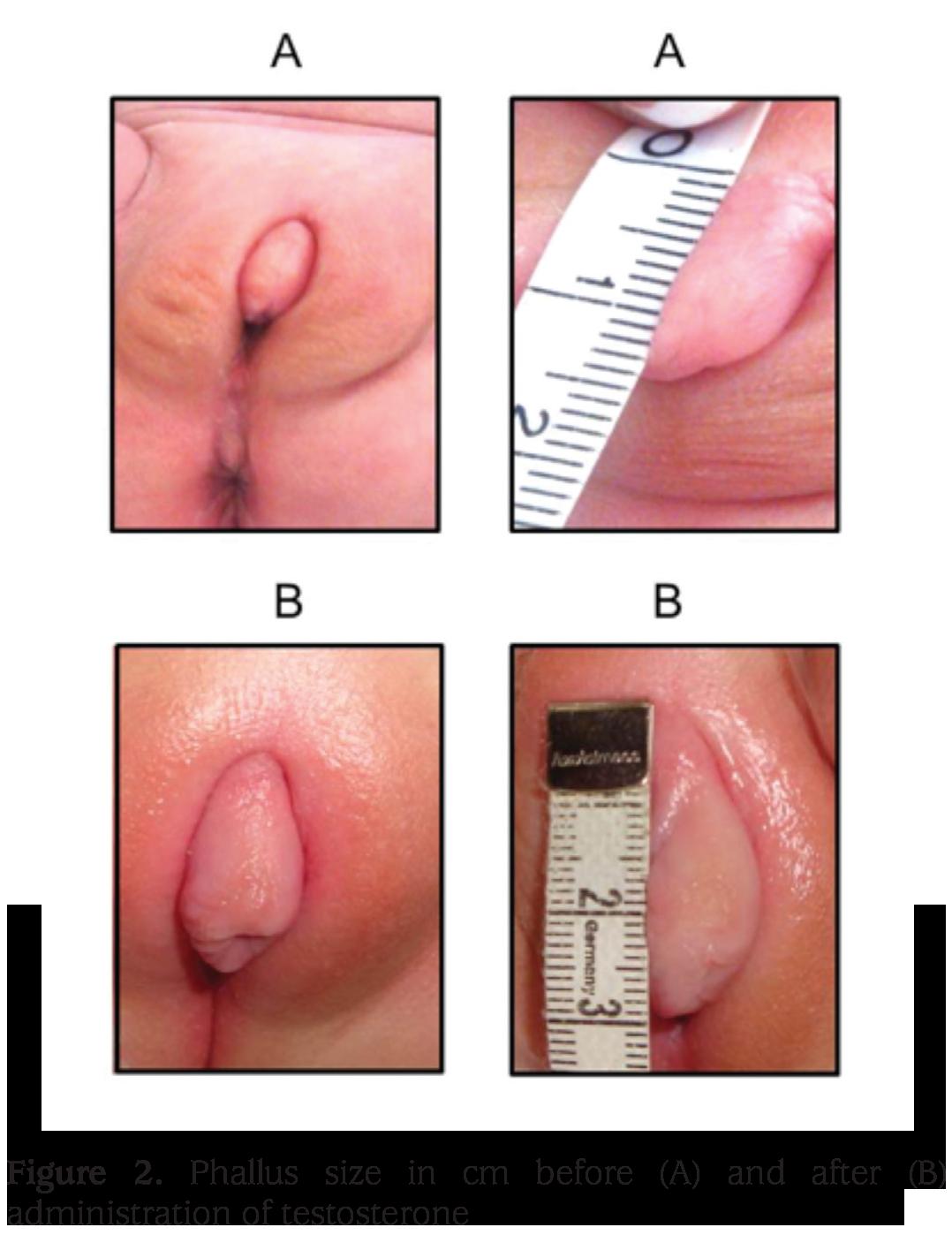 Vagina to penis sex change
