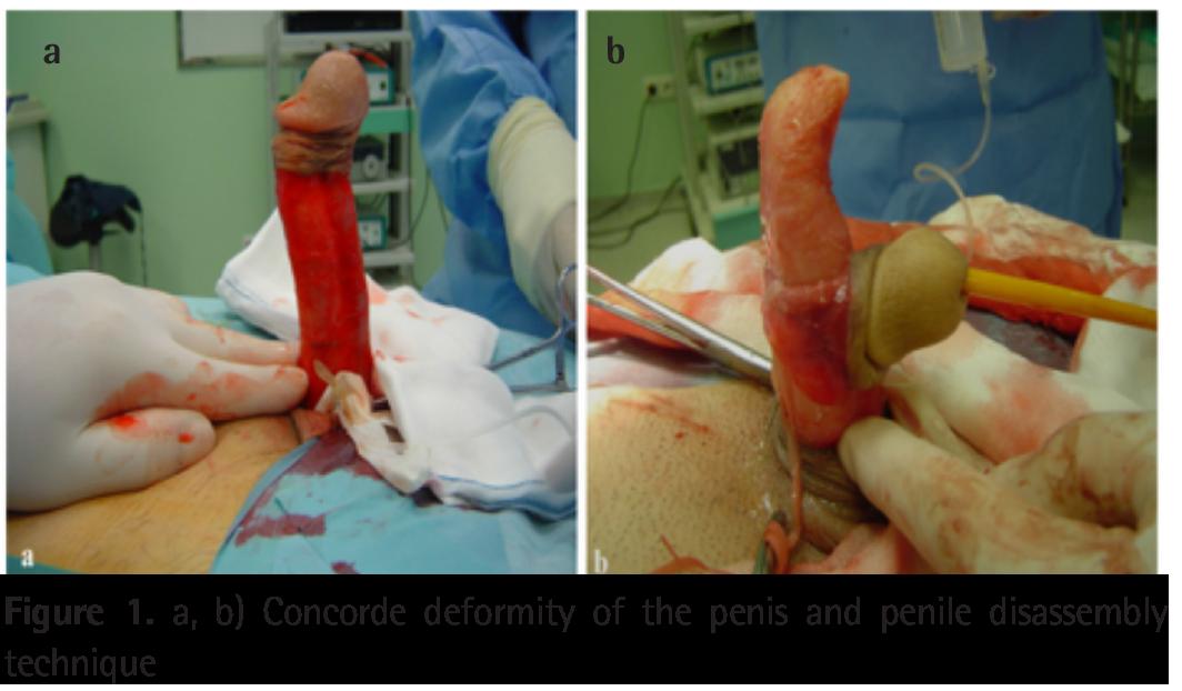 deformity-of-the-penis-nude-celeb-news