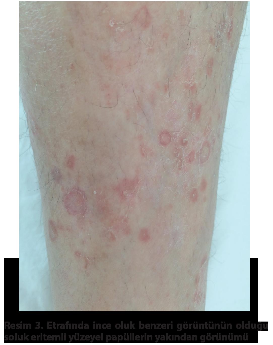Aylık kahverengi ile belirtilen hastalıklar