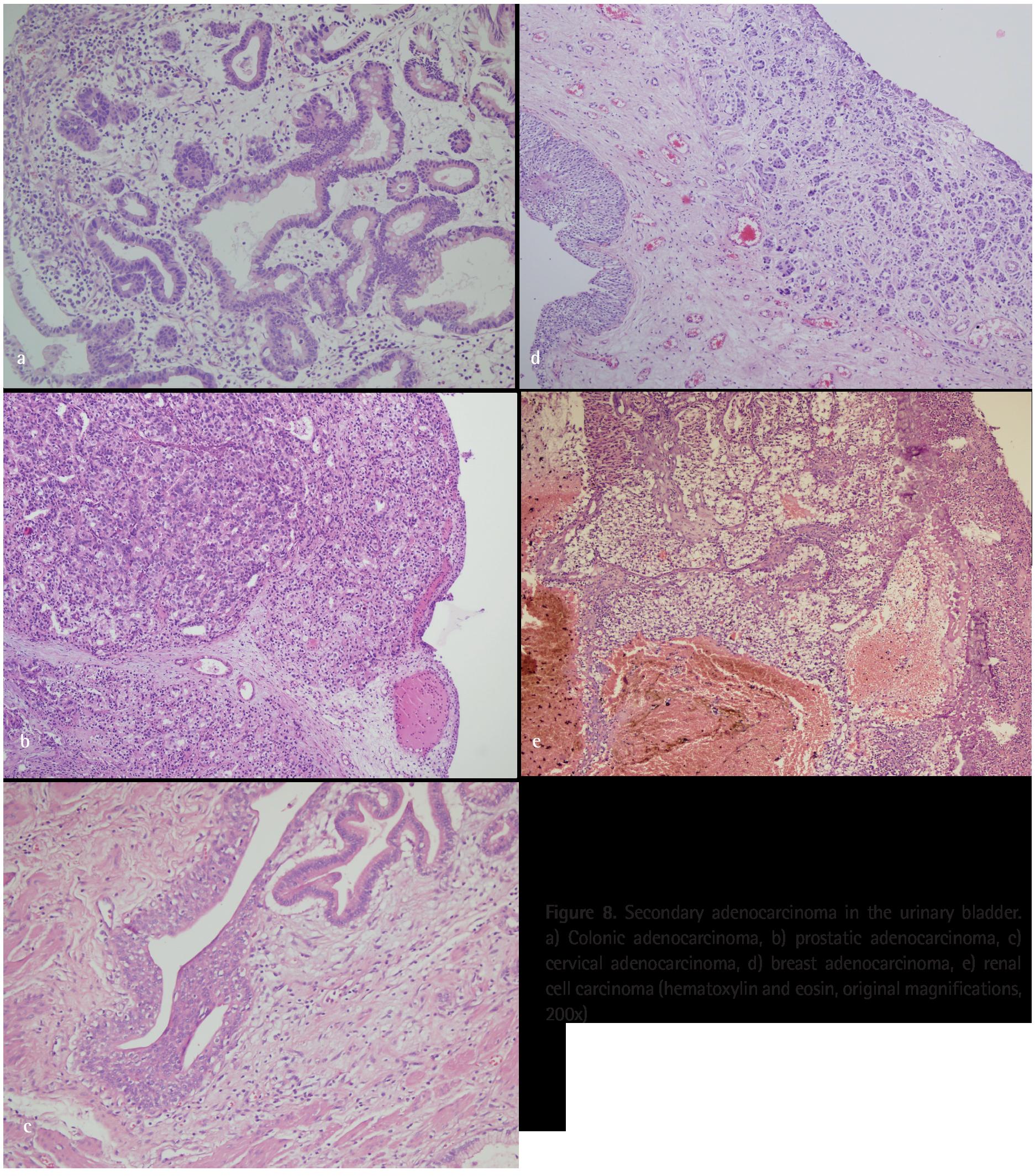 prostate vs urothelial carcinoma immunohistochemistry