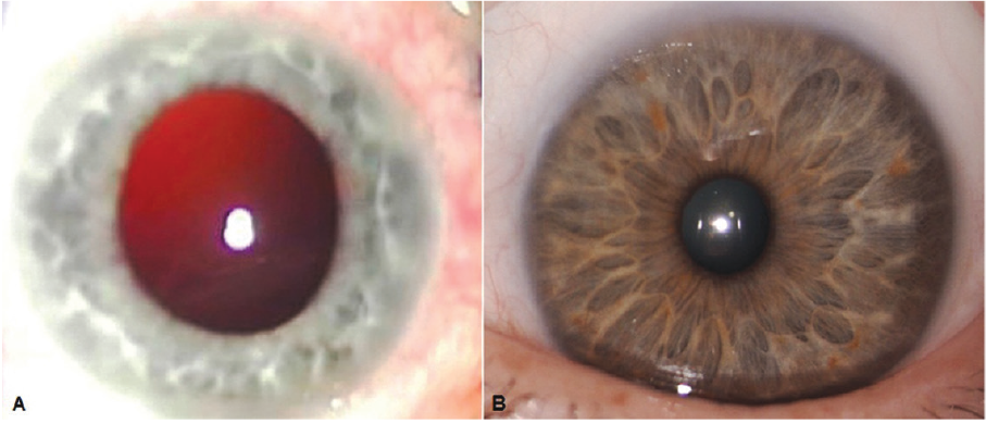 813ccd9093e1 Figure 1. The patient s right eye (A) appears a.