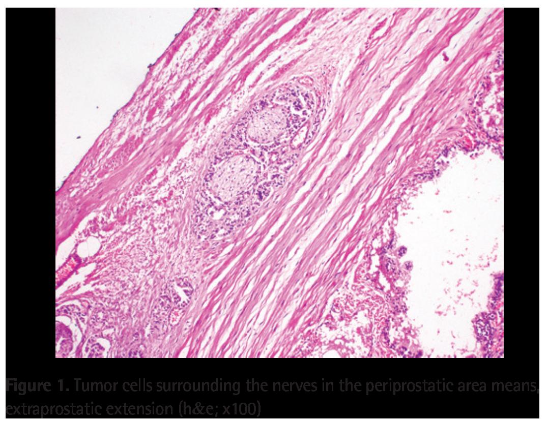 bladder neck involvement prostate cancer